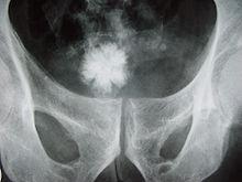 Radiografía de un cálculo renal